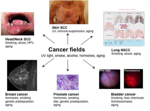 Cancer fields fig-crop496x369.png